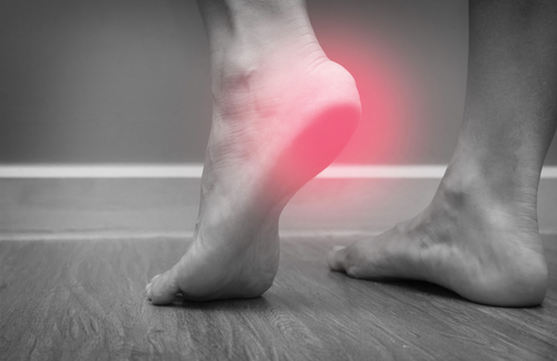 Do You Experience Heel Pain When You Run?